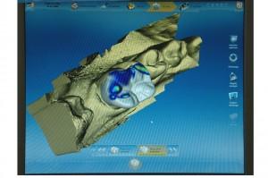 3D-Konstruktion des Zahnersatzes im Kiefer
